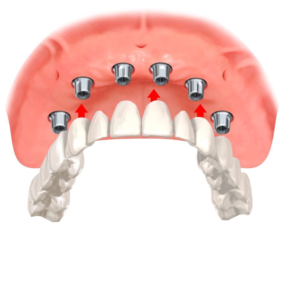 имплантация зубов внутрикостные имплантаты