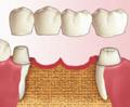 Как поставить зуб без моста