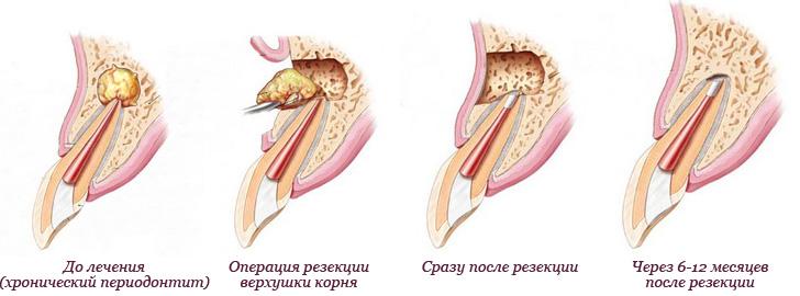 Гранулема послеоперационного шва как лечить