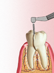 Культя на подвижный зуб